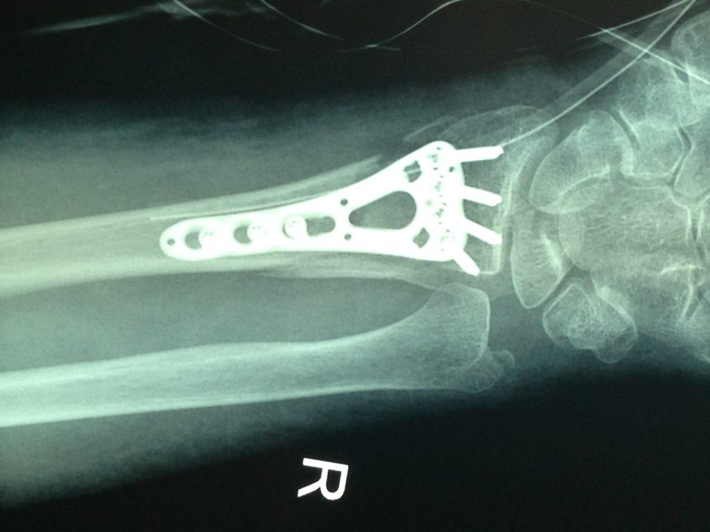 złamanie kości promieniowej