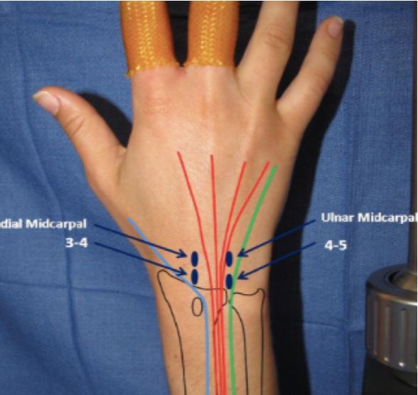 Dostępy artroskopia nadgarstka